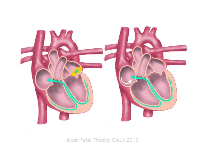 左:上室性頻拍(自動能亢進) 右:心房粗動(マクロリエントリー)