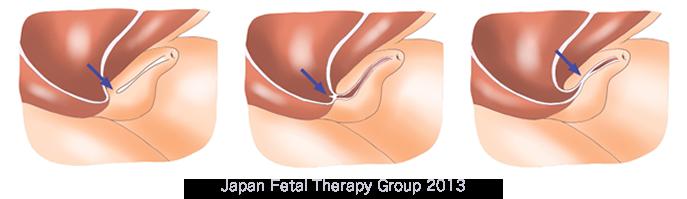 左:尿道閉鎖症 中央:後部尿道弁 右:プルーンベリー症候群